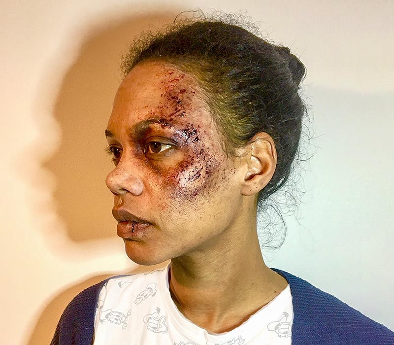 Gang violence injuries SFX by FTmakeup London