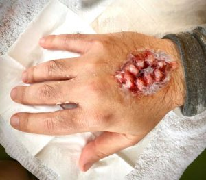 Fight Club special effects prosthetics for Spiel creative