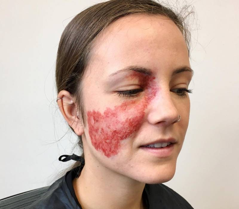 Special Effects Makeup Artist-strawberry birthmark