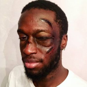 Special effects makeup-boxing wounds and black eye