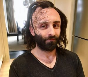 The Hound sfx wig and burn scars by FT