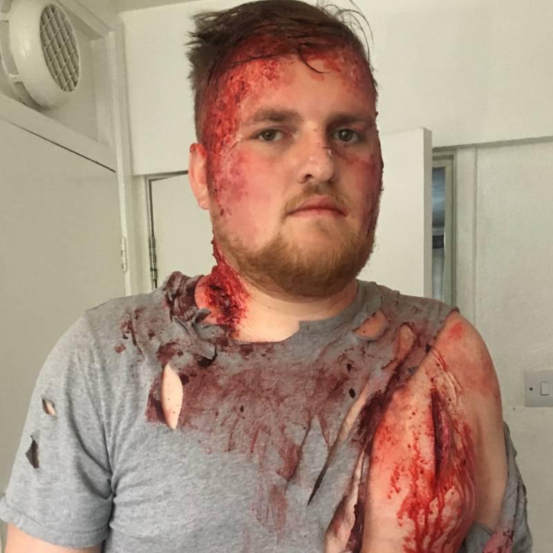 sfx makeup artist FT- man attacked by knives & beaten
