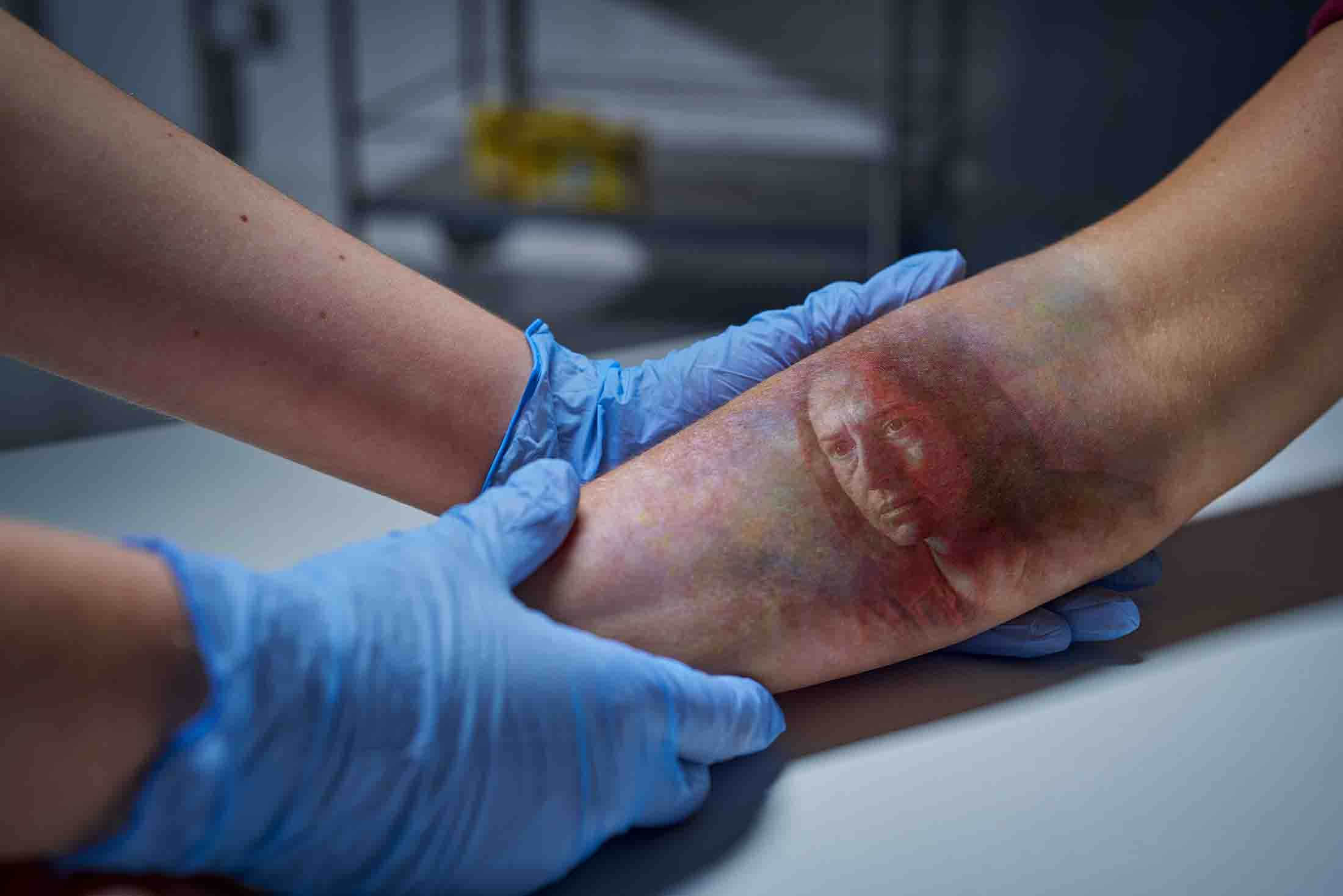 sfx makeup for bd medical at DHP Digital