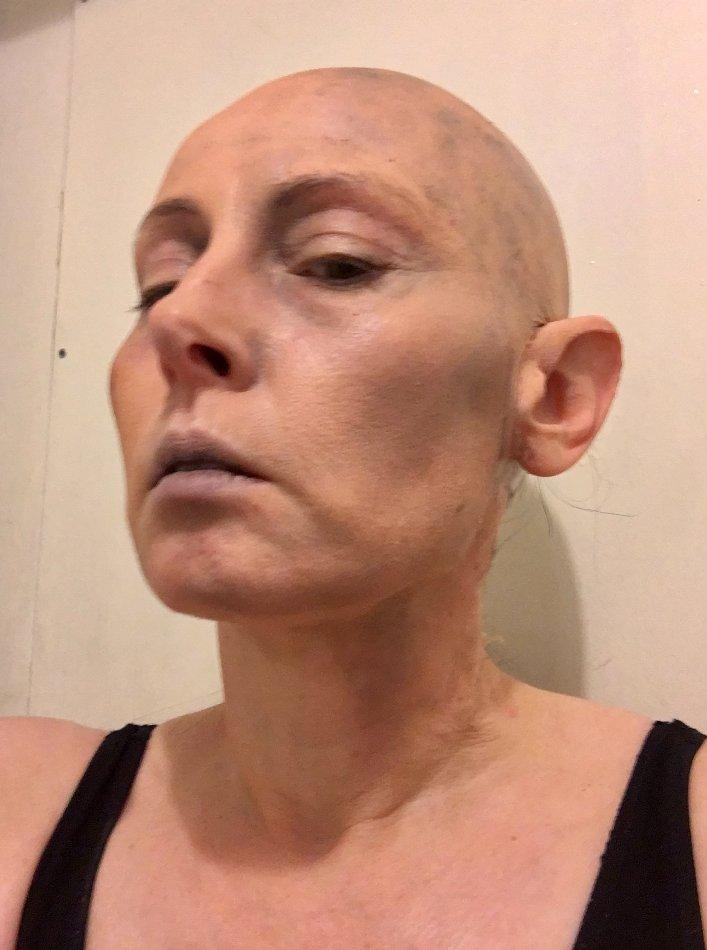 Bald Cap-cancer patient at FTMakeup London