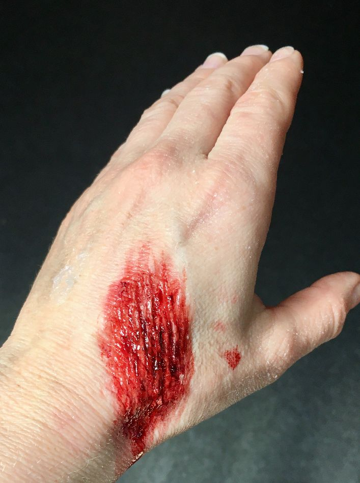 Hand Scratches by special effects makeup artist London